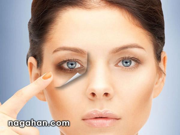 علت گودی و سیاهی دور چشم + رفع تیرگی زیرچشم و درمان های طبیعی و خانگی با سیب زمینی، یخ و چای