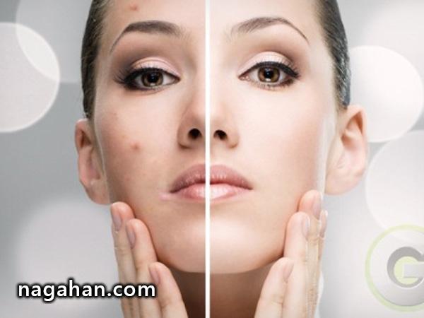 6 روش کنترل و درمان جوش صورت!