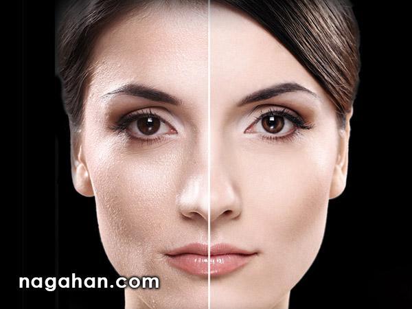با دانستن 9نکته طلایی پوست چرب صورت را درمان و از شر جوش و لک خلاص شوید