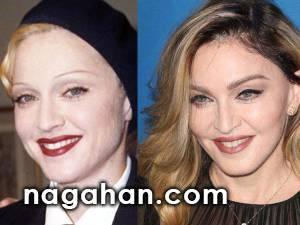 عکس های قبل و بعد مدل ابرو افراد معروف | مدل ابرو را دست کم نگیرید.