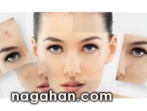 چند روش خانگی، طبیعی و جادویی برای از بین بردن جوش صورت