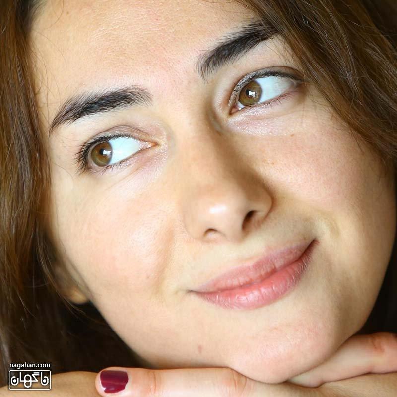 هانیه توسلی قبل از عمل